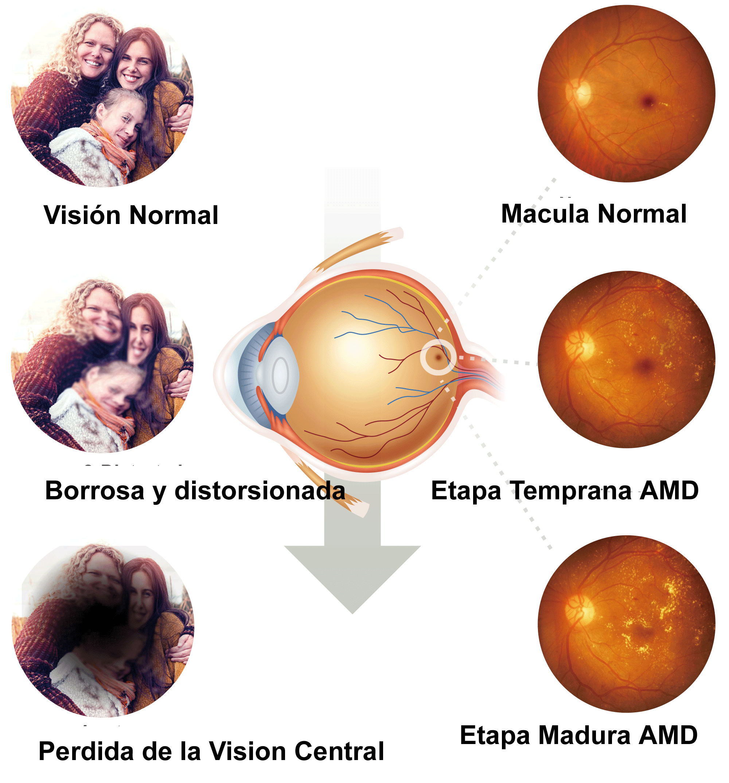 etapas de la degeneración macular